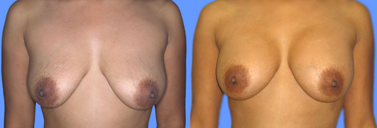 this patient is a 41 year old woman who after two pregnancies underwent 300 ml saline implant breast augmentation with excellent results.