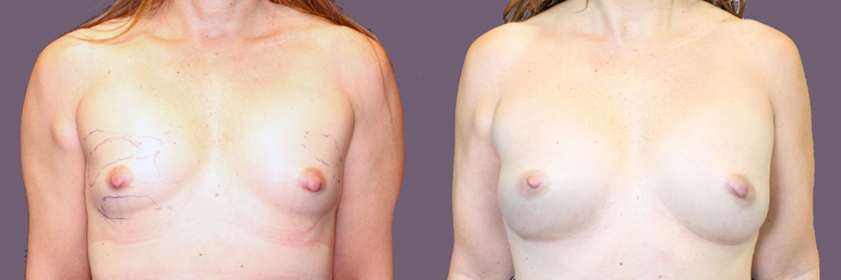 this patient is a 36 year old athletic woman who underwent two successive fat transfer procedures to the breast, resulting in a natural, modest, and permanent breast enhancement.