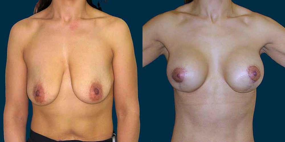 breast-lift-front-02.jpg