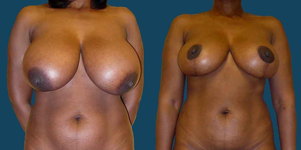breast-lift-front-01.jpg