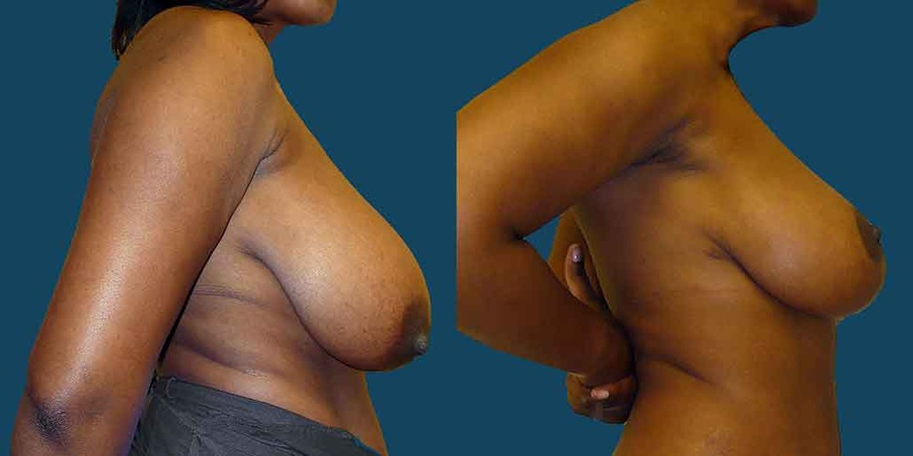 breast-lift-lateral-edit-01.jpg