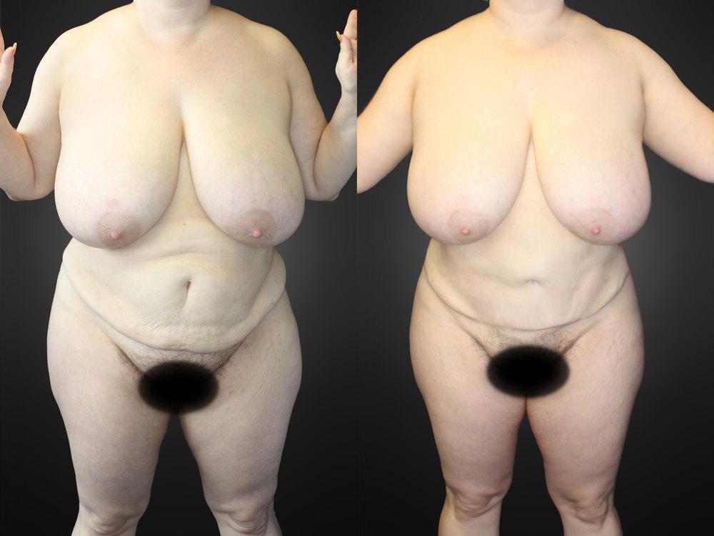 front01-abdominoplasty.jpg