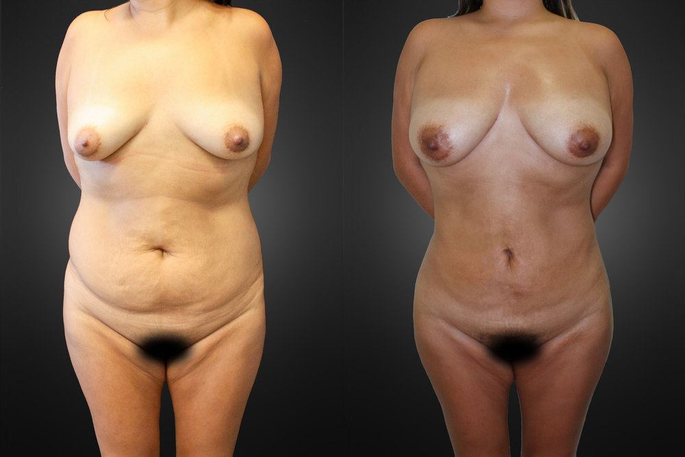 liposuction-front-02a.jpg