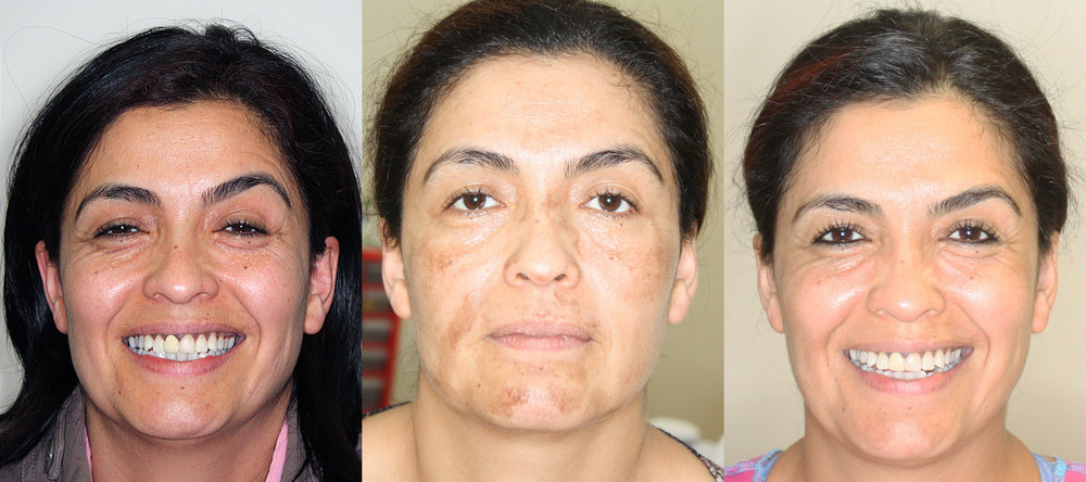 patient is a 44 year old woman who underwent 2 peel treatments (30% salicylic acid peel and then a deeper 25% TCA peel) over two months.  the left photograph is before any treatment, the middle photograph is 2 weeks after the second peel during the recovery phase, and the right photograph is 4 weeks after the TCA peel.  patient also underwent a customized skin care regimen treatment during this process.