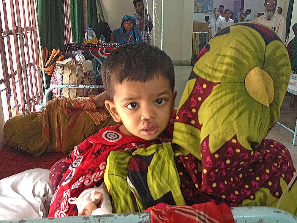 patient after a cleft lip repair in the hospital ward. he is being held by his mother with the flower shawl