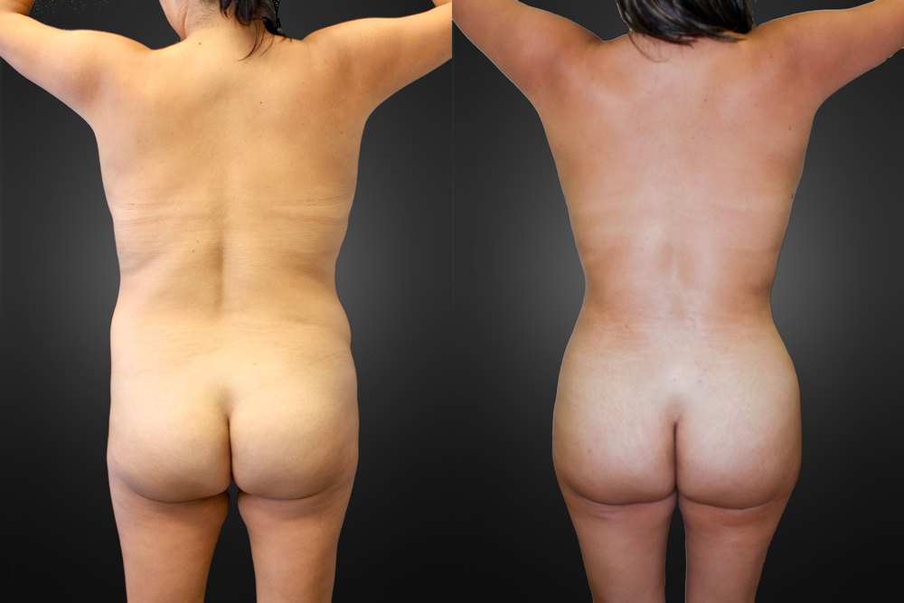 liposuction-back-02.jpg