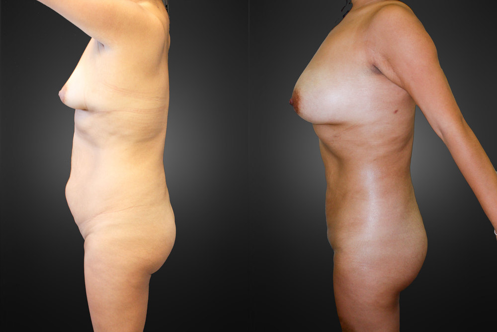 liposuction-lateral-02.jpg
