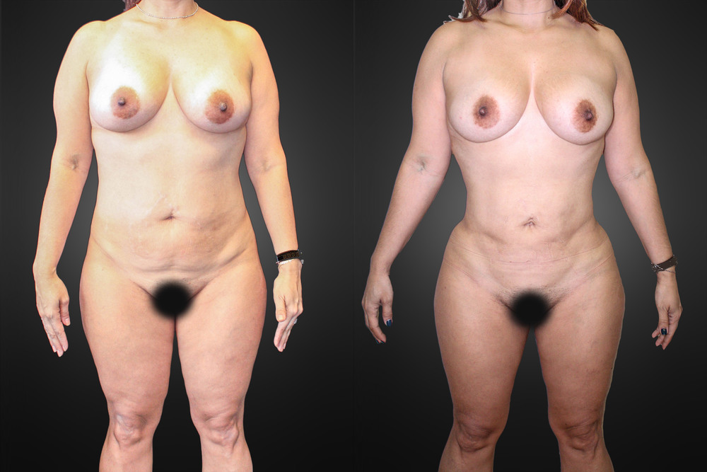 Lipo-front-before-final.jpg