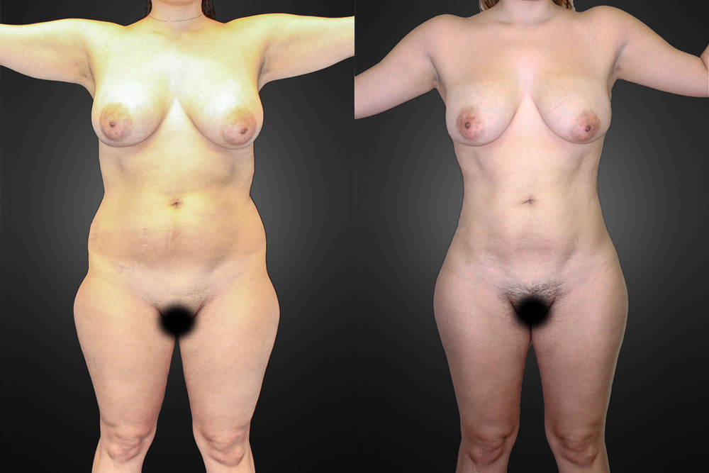 lipo-front-before-after-01.jpg