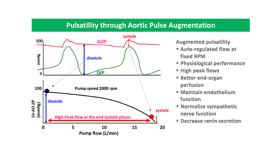 Pulsatility pulse augmentation.png