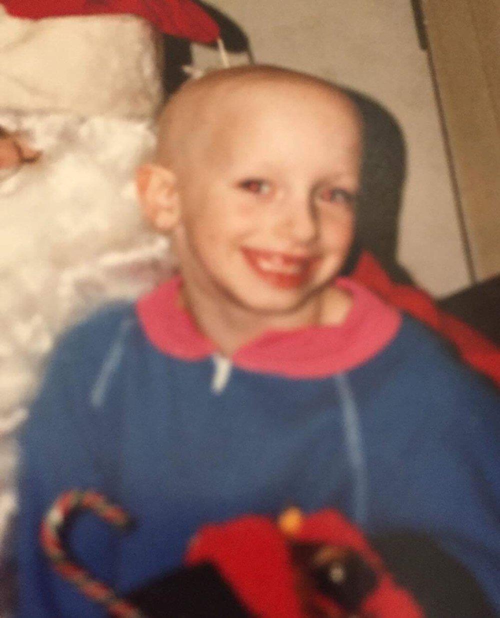 Alopecia Lindsay Walter