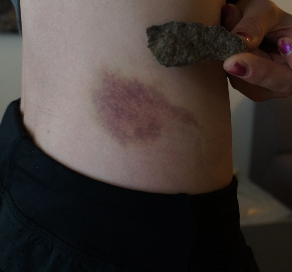 The broken hold and matching bruise