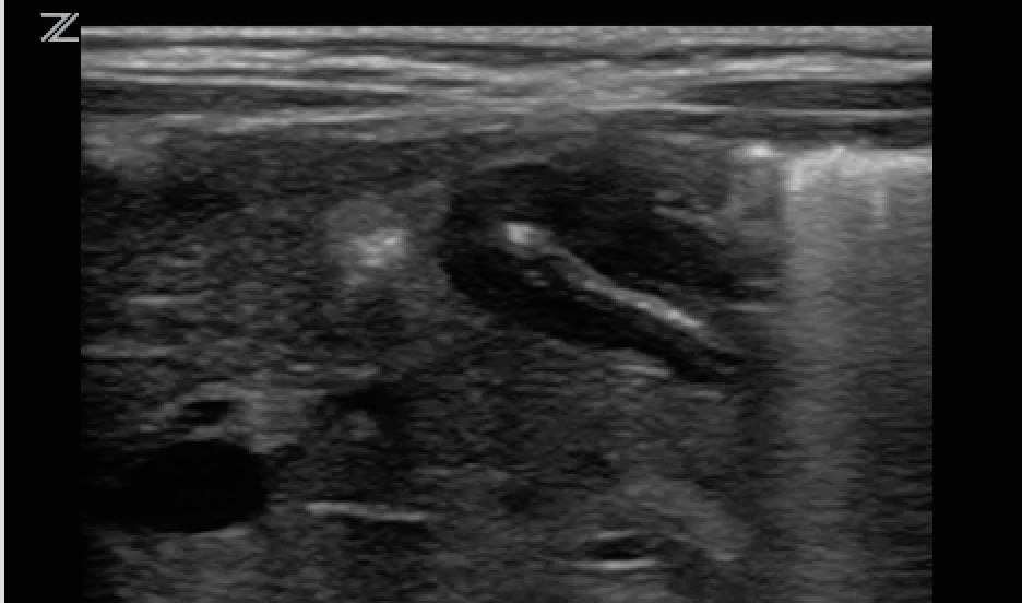 case studies in pediatric emergency and critical care ultrasound