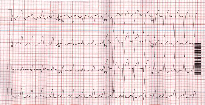 First EKG