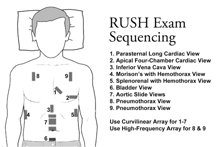 Image 3: RUSH exam imaging locations