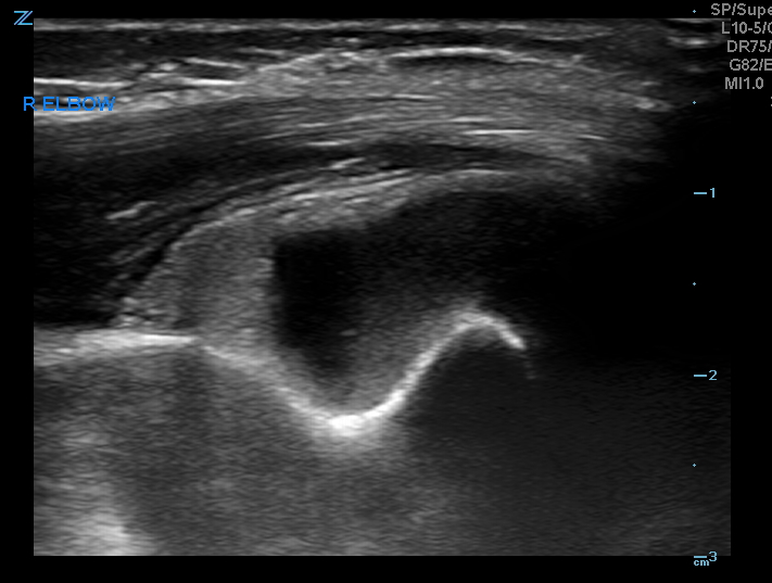 R elbow - sagittal view