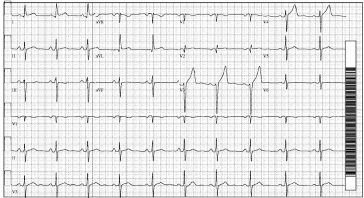 2017 8-13 previous EKG.jpg