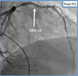 2017 11-5 cath post PCI.jpg