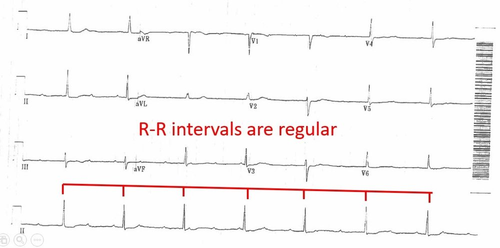 2018 7-29 R-R intervals are regular.jpg