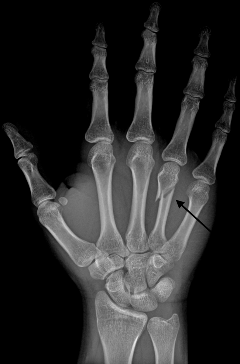 "A classic ""Boxer's Fracture"" at the neck of the 4th metacarpal bone"