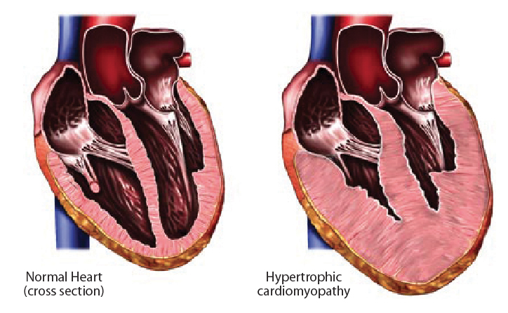 Hypertrophic cardiomyopathy as seen on the right image involves abnormal thickening of the left ventricle (usually the septum) and is the most common cause of SCD