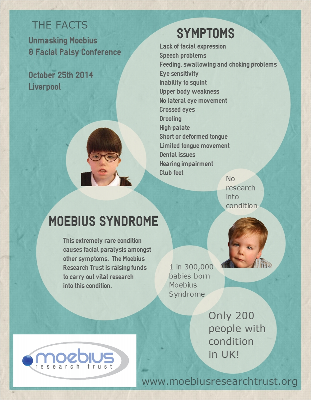 Moebius Syndrome Symptoms