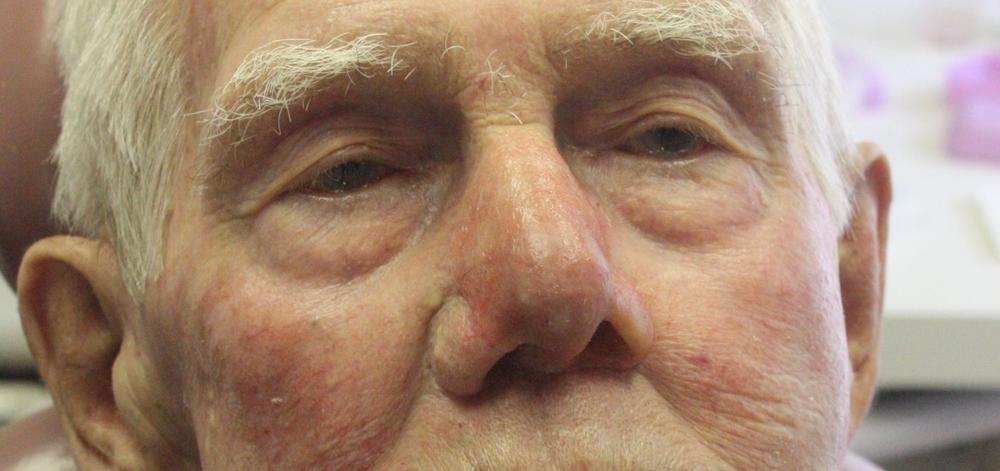Nasal (Nose) Prosthesis