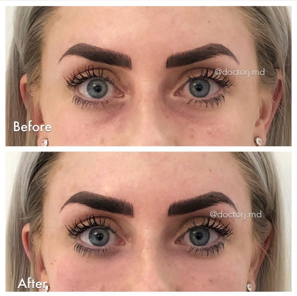 Image showing immediate before and after results for tear trough fillers. My eyebrows were microbladed earlier that day. Please ignore LOL.