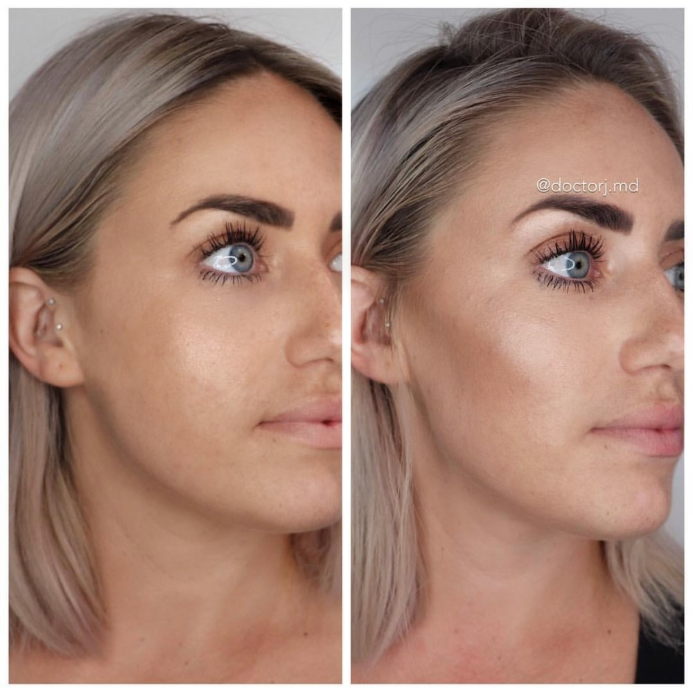 Image showing next day results for cheek fillers.