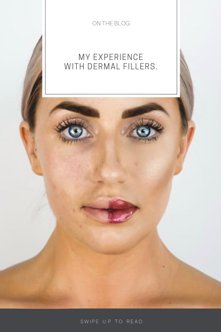 My Experience With Dermal Fillers  | allypintucci com