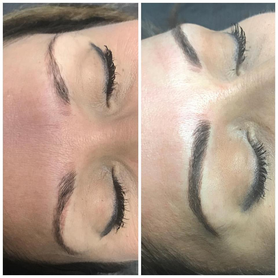 Considering A Microblading Correction What You Need To Know La
