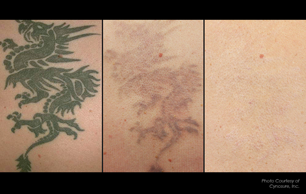 Before & After — Invisible Ink Tattoo Removers in Pittsburgh ...