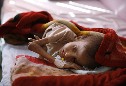 """NBCNEWS: """"A malnourished child waits to receive treatment at a therapeutic feeding center in a hospital...""""  Photo: Hani Mohammed"""