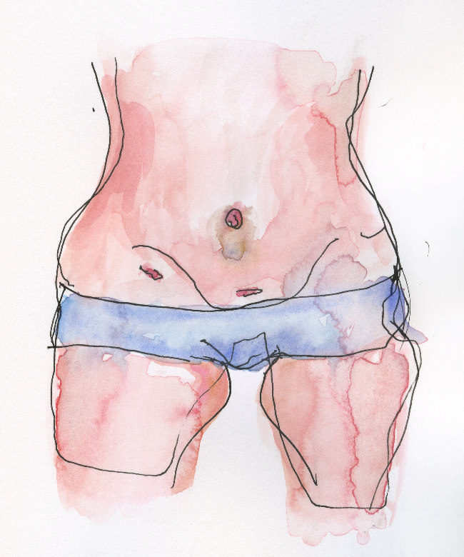 Bilateral Salpingectomy | Lydia Makepeace