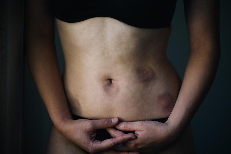 mish+scars.jpg