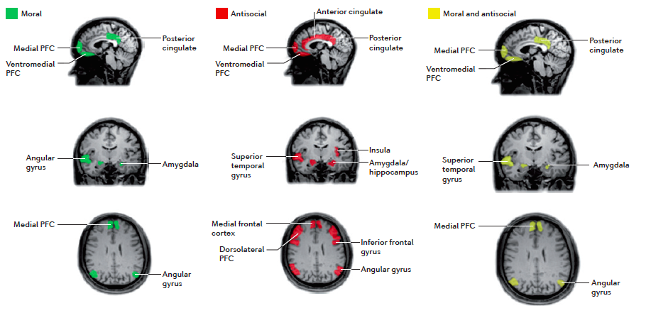 A schematic diagram of brain regions that are activated only in moral decision making (green), regions that are impaired only in antisocial groups (red), and regions common to both antisocial behaviour and moral decision making (yellow). This overlap gives rise to the 'neuromoral' hypothesis of antisocial behaviour, which states that some of the brain impairments that are observed in antisocial individuals disrupt moral emotion and/or decision making, thereby predisposing individuals to rule-breaking, antisocial behaviour.