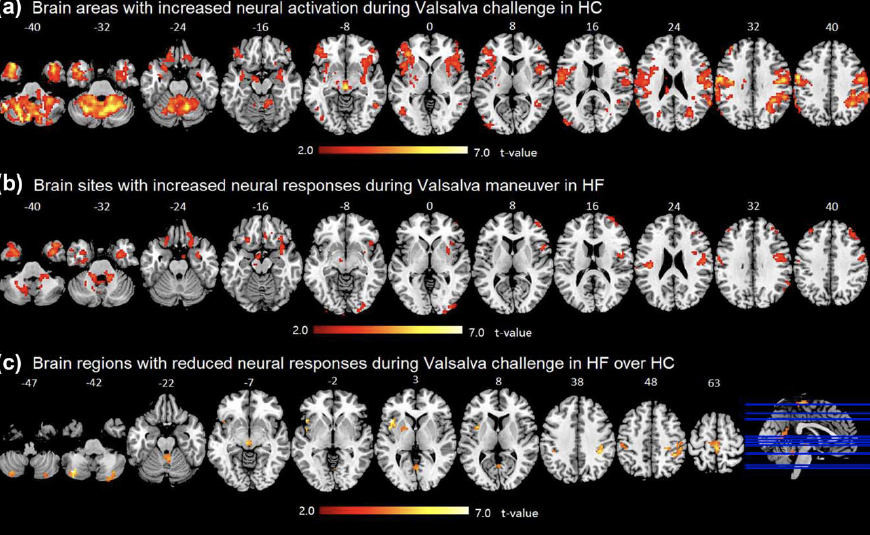 (a)Brain areas with increased neural activities during the challenge in healthy controls (b) sites with increased neural activities during the challenge in heart failure patients (c) regions with lower neural activation in heart failure patients