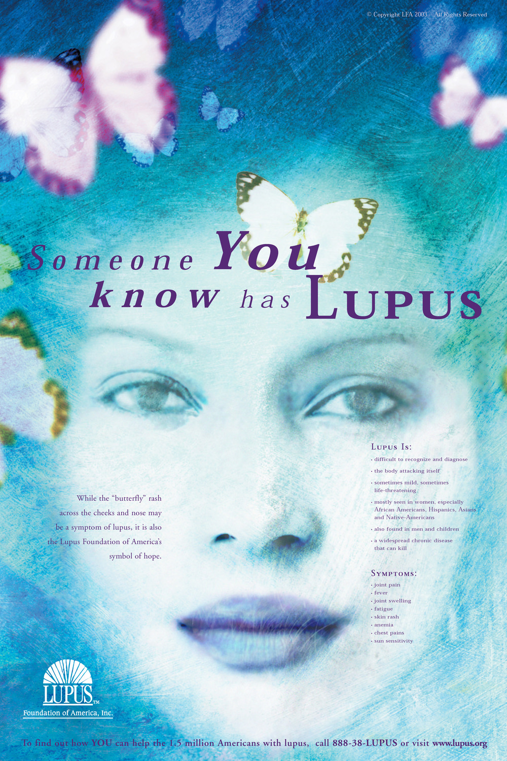 Lupus GA Butterfly Poster