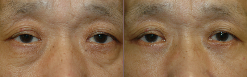 Lower Blepharoplasty_00000.jpg