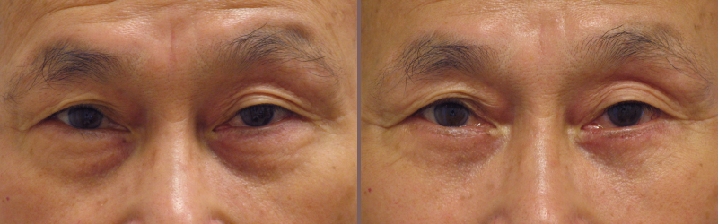 Lower Blepharoplasty_00001.jpg