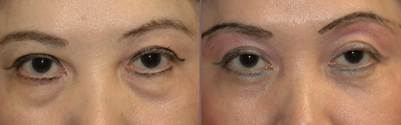 Lower Blepharoplasty_00002.jpg