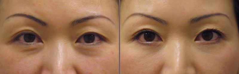 Lower Blepharoplasty_00004.jpg