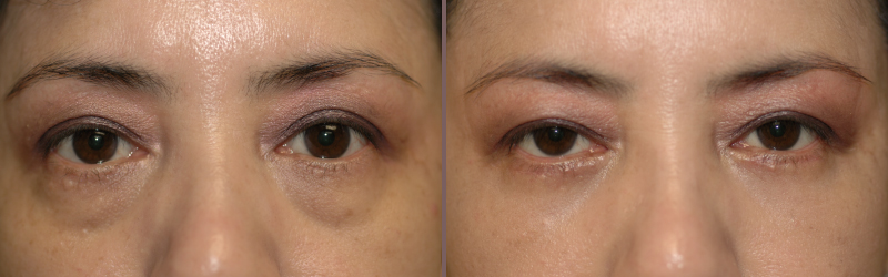 Lower Blepharoplasty_00003.jpg