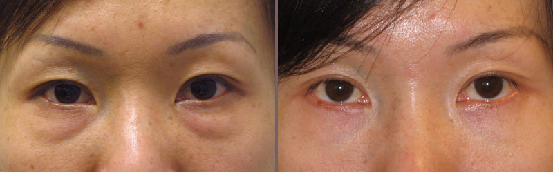 Lower Blepharoplasty_00005.jpg