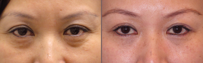 Lower Blepharoplasty_00007.jpg