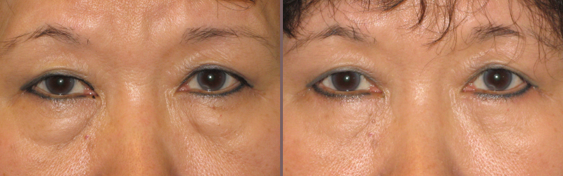 Lower Blepharoplasty_00006.jpg