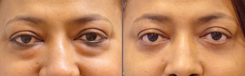 Lower Blepharoplasty_00008.jpg