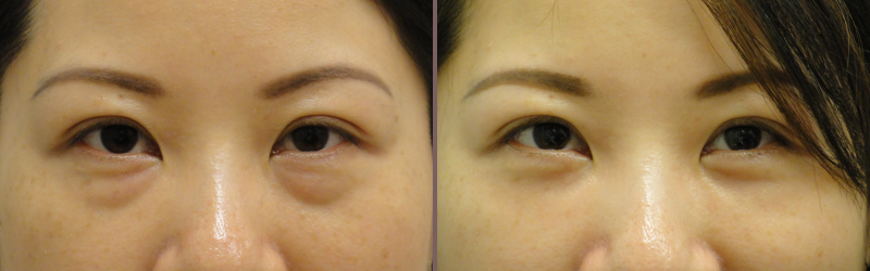 Lower Blepharoplasty_00009.jpg