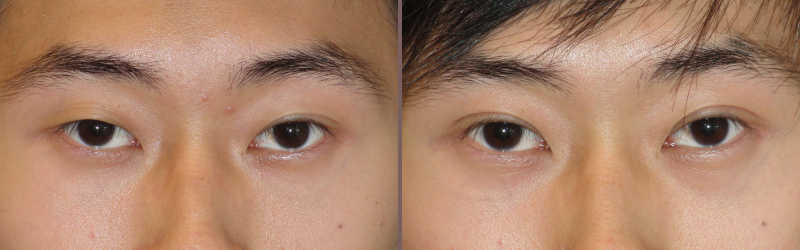 Asian Blepharoplasty_00000.jpg