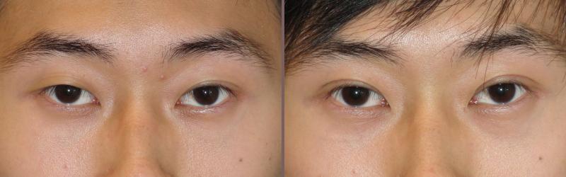 Asian Blepharoplasty_00000.jpg